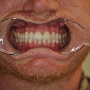 Kosmetisk tandbehandling